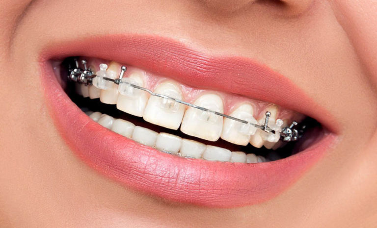 ortodoncija